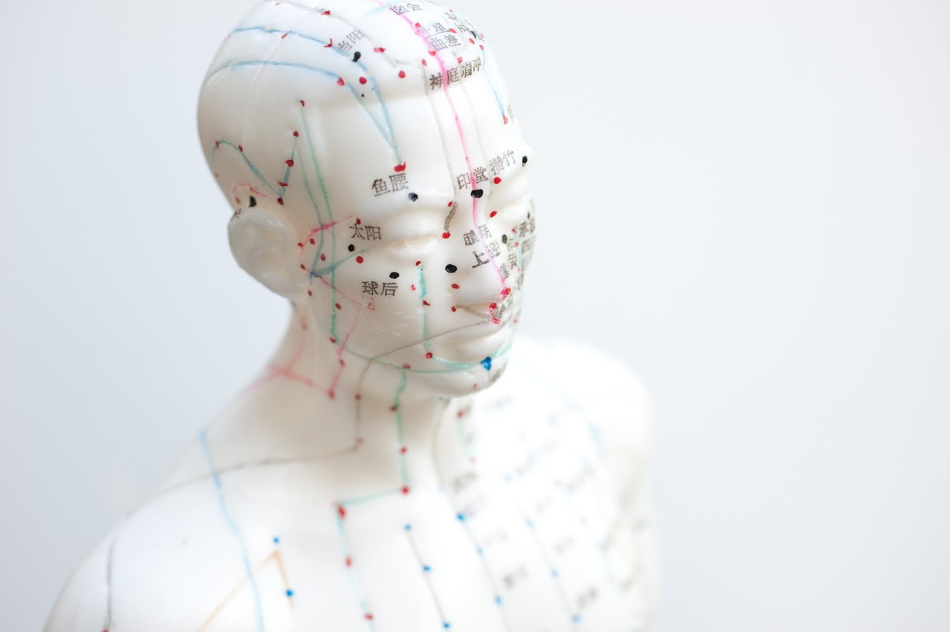 akupunktur die heilende kraft der nadeln